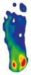 Druckmessung PegAssist Insole im OrthoWedge